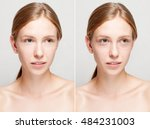 before and after cosmetic... | Shutterstock . vector #484231003