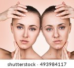 young woman before and after... | Shutterstock . vector #493984117