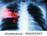 lobar pneumonia . film chest x...   Shutterstock . vector #496592947