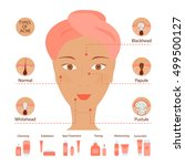 types of acne pimples human... | Shutterstock .eps vector #499500127