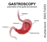 gastroscopy  a study of the... | Shutterstock .eps vector #500171053