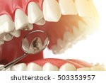 human tooth with caries  hole... | Shutterstock . vector #503353957
