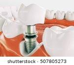 Dental Implant   Series 2 Of 3...