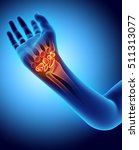 3d Illustration Of Carpal  ...