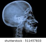 x ray of human skull | Shutterstock . vector #511457833