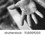 palm with calluses. hard work... | Shutterstock . vector #518309203
