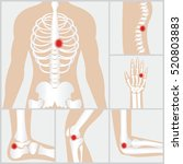 disease of the joints and bones ... | Shutterstock .eps vector #520803883