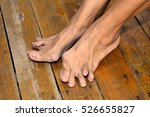 old woman's foot deformed from... | Shutterstock . vector #526655827