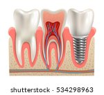 dental implant and real tooth...