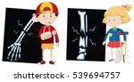 boy and girl with broken bones... | Shutterstock .eps vector #539694757