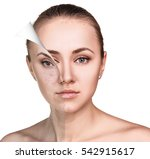 woman face before and after... | Shutterstock . vector #542915617