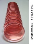 Small photo of Blurred agar for microbacteria