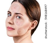 circles shows problem skin of... | Shutterstock . vector #548168497