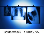 lung x ray and hand hanging...   Shutterstock . vector #548859727