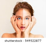 woman face with half sunburn... | Shutterstock . vector #549522877