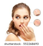 post acne marks  treating acne... | Shutterstock . vector #552268693