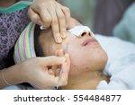 beauty treatment of face skin... | Shutterstock . vector #554484877