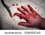 Crime Scene Murder Victim Hand...