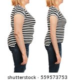 mature woman's body before and... | Shutterstock . vector #559573753
