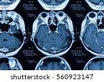 Stock photo magnetic resonance image mri scan of the brain 560923147