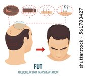 male hair loss treatment with... | Shutterstock .eps vector #561783427