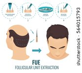 male hair loss treatment with... | Shutterstock .eps vector #564015793