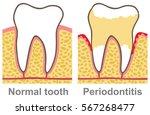 human gum bleeding  ... | Shutterstock .eps vector #567268477