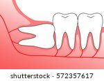 illustration of wisdom teeth... | Shutterstock .eps vector #572357617