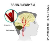 blood vessels in the brain with ... | Shutterstock .eps vector #576344323