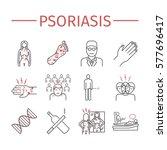 psoriasis. symptoms  treatment. ... | Shutterstock .eps vector #577696417