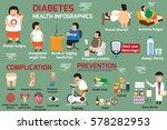 infographics detail... | Shutterstock .eps vector #578282953