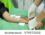 Small photo of people hand when them was chronic renal failure and vascular access