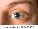 Small photo of Blue eye with dilated pupil