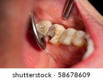 Small photo of Broken Tooth, Lower Left Molar, Disto-Lingual Cusp Fracture