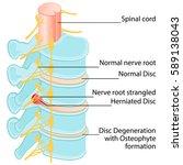 disc herniation at a human... | Shutterstock .eps vector #589138043