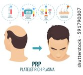 male hair loss treatment with... | Shutterstock .eps vector #591790307