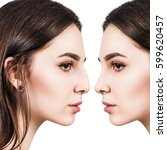female nose before and after... | Shutterstock . vector #599620457