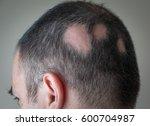 Small photo of Alopecia Aerata - Spot Baldness