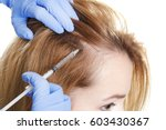 young woman with hair loss... | Shutterstock . vector #603430367