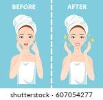 before after set of upset... | Shutterstock .eps vector #607054277