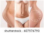 the cellulite removal plan.... | Shutterstock . vector #607576793
