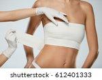 body plastic surgery. slim... | Shutterstock . vector #612401333