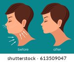 woman face before and after... | Shutterstock .eps vector #613509047