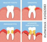 stages of tooth periodontitis.... | Shutterstock .eps vector #614262083