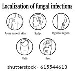 the localization of fungal...   Shutterstock .eps vector #615544613