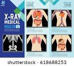 x ray screen showing internal... | Shutterstock .eps vector #618688253