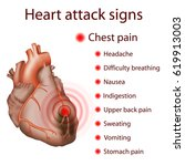 heart attack signs  symptoms.... | Shutterstock .eps vector #619913003