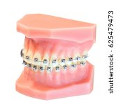 denture with braces isolated on ... | Shutterstock . vector #625479473
