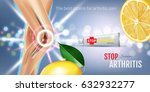 arthritis pain relief ointment... | Shutterstock .eps vector #632932277