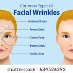 common types of facial wrinkles.... | Shutterstock .eps vector #634526393